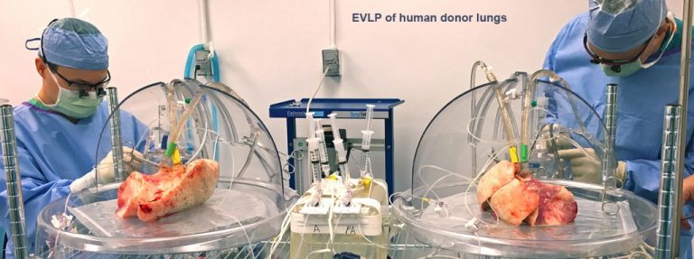 EVLP_human2-1024x383