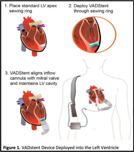 Illustration of a VADstent Device deployed into the left ventricle