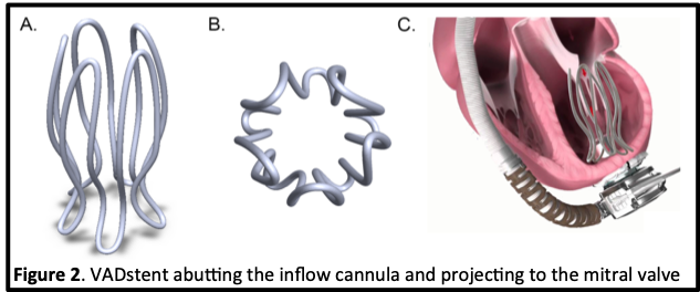 Illustration of a VADstent abutting the inflow cannula and projecting to the mitral valve